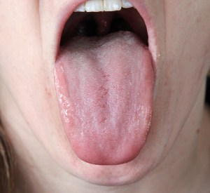 Tongue Body:  Note the  scalloping on the sides of the tongue body, the tongue has a slightly swollen appearance, with one side more prominently swollen than the other.   These are signs of dampness.